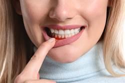 口臭是牙周病主要徵兆 醫點名2族群高風險