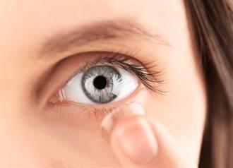 婦人眼皮脹痛 竟取出「埋28年」隱形眼鏡 醫揭恐怖真相