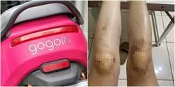 正妹騎gogoro慘摔雙腿整片瘀青 竟是「停戶外」釀禍