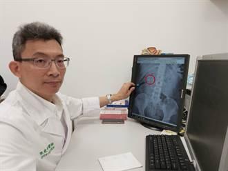 腰痛、血尿竟是結石惹禍 新式手術縮短療程