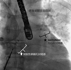 男子血管一堵再堵 用這2手術免復發