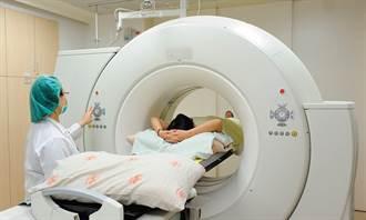 全球癌症死亡率第一名  3大族群適用低劑量電腦斷層篩檢肺癌