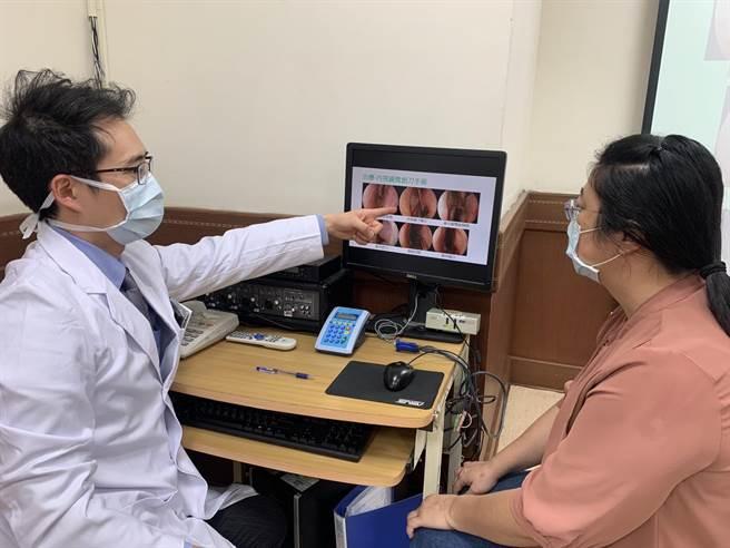 中山醫學大學附設醫院耳鼻喉頭頸外科醫師黃承楨向患者解釋,中鼻甲症候群就是因為鼻中膈彎曲或中鼻甲肥大,造成原本不該接處的部位互相壓迫。(馮惠宜攝)