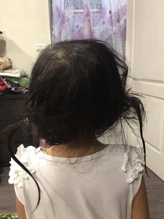 爸爸為小孩洗頭時竟沒有把小孩頭上的綁頭髮橡皮筋拿下。(圖/翻攝自臉書)