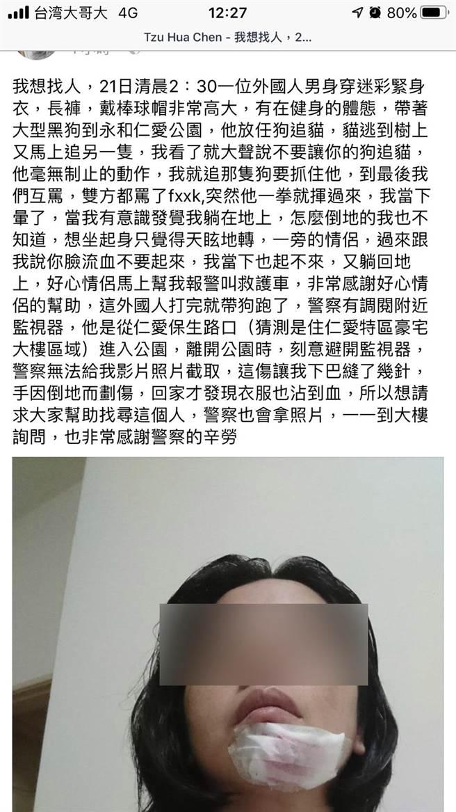 陳女在臉書貼文,指遭外籍男子打傷。(翻攝自臉書)
