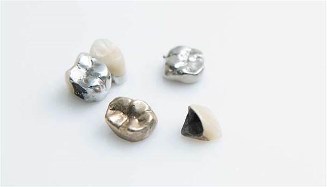 補牙用銀粉危害多?當心挖除更傷身,4種材質優缺點一次看懂。(圖/林后駿)