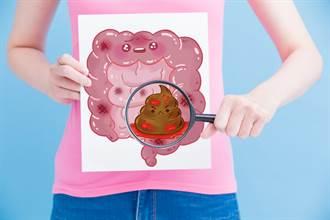 便便黏馬桶是大腸癌徵兆?專科醫:其實是2壞習慣害的