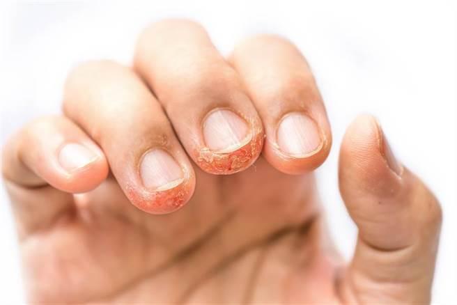從指甲看出5大身體警訊!醫曝:出現不明黑線恐致死。(示意圖/達志影像)