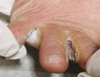 感染香港腳 45歲建築工人差一點沒命