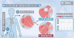 及早治療避免中風 認識心房顫動的微創導管手術