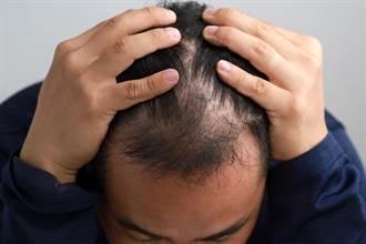換季掉髮真惱人!台大研究指出:「雞皮疙瘩」反應藏生髮機制