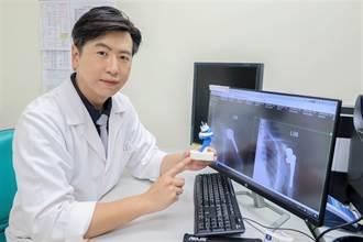 「逆轉式微創人工肩關節手術」抬手新希望