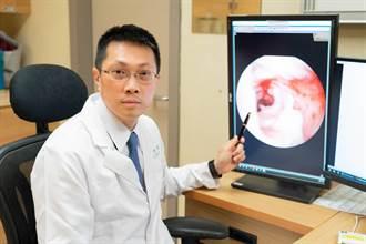 肛門反覆腫痛、產生分泌物 小心是罹患肛門廔管