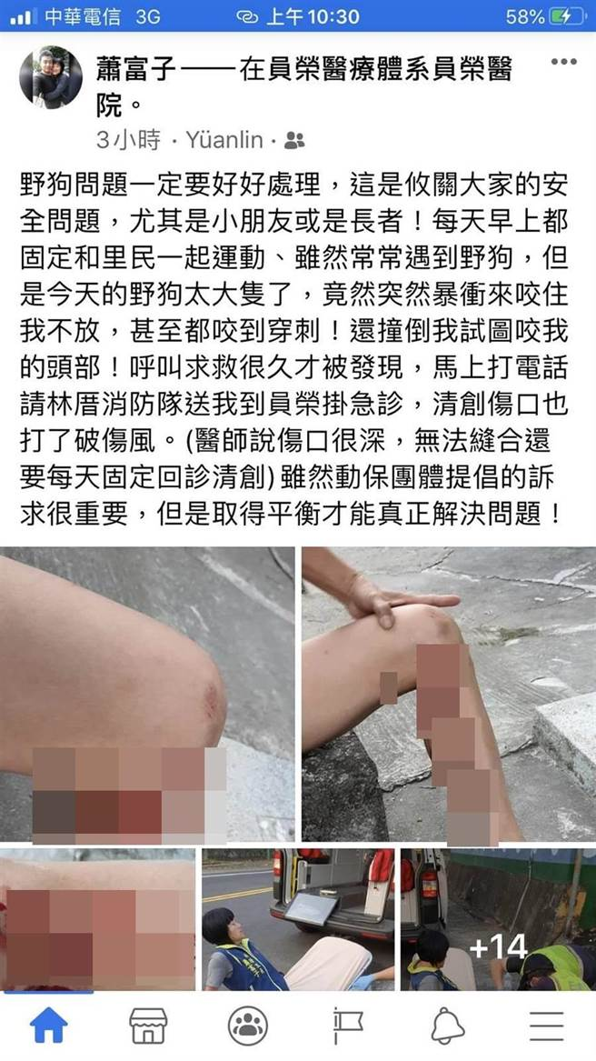 蕭富子在臉書貼出被野狗攻擊咬傷的驚恐過程,呼籲各界正視流浪狗問題。(摘自臉書/謝瓊雲彰化傳真)