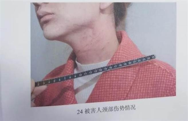 女子脖子上滿是勒痕(圖片取自光明網)