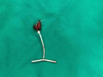 扯!子宮摘除後避孕器留體內 58歲婦尿道感染訝然發現這異物
