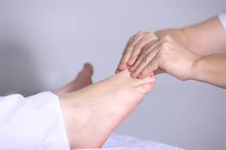 拇趾外翻可以矯正? 足踝名醫朱家宏點出關鍵