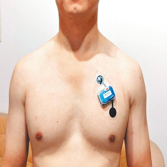 患者若有心悸、心律不整,過去就醫時,不見得可以檢出異,但林口長庚醫院採用無線穿戴式裝置,患者不需住院,在家也能24小時檢心電圖。(林口長庚醫院提供/賴佑維桃園傳真)