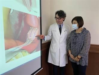 嗯嗯太用力 49歲中醫師竟子宮脫垂