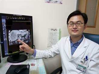 肝癌微創手術 2老翁重獲新生