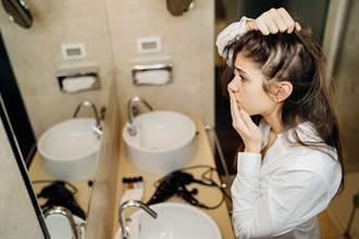 女被鬼剃頭困擾 吃類固醇也沒用 中醫師出招解救