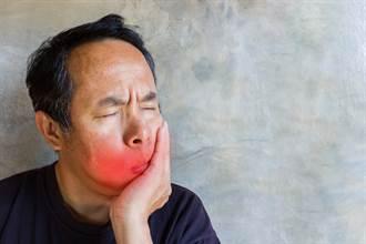 男下巴痛如萬根針扎 醫檢查見鼻咽處大肉團:是癌症