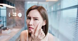 痘痘位置竟會影響運勢 山根臉頰冒痘暗示健康危機