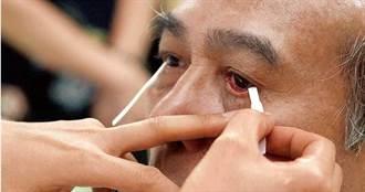名醫罹病竟不知「眼皮下垂」差點砸了自己招牌