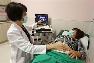巧克力囊腫術後未追蹤 30歲粉領卵巢壞死