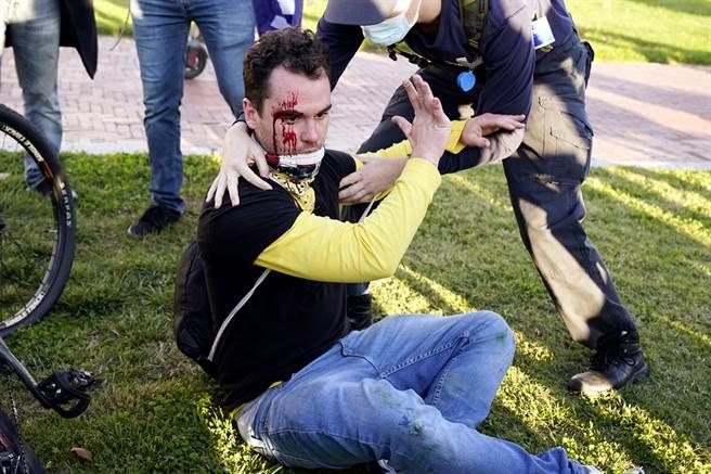 14日華府百萬人挺川普大遊行還算平順,只有零星衝突發生,不過當中有川粉被打到頭破血流。(圖/美聯社)