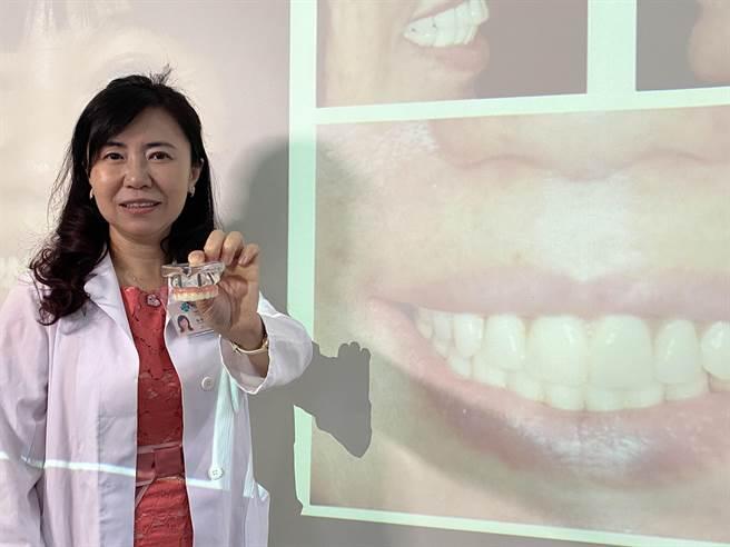 63歲畫家Emily透過台中榮總口腔醫學部團隊治療,以All-on-4全口速定植牙治療重建上顎牙齒找回自信的笑容。(馮惠宜攝)