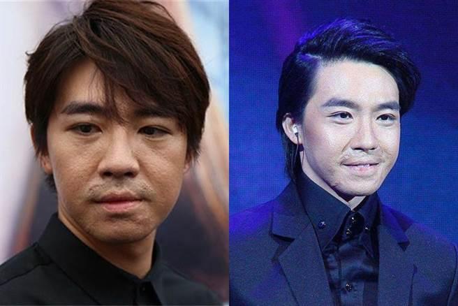 俞灝明當年的拍戲意外 讓他留下嚴重的疤痕 (圖/ 翻攝自網路)