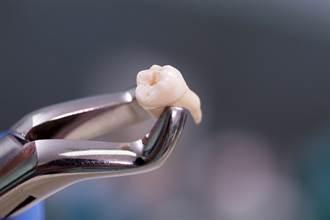 一次拔20顆牙冤死?醫揭真相:全身麻醉風險更高