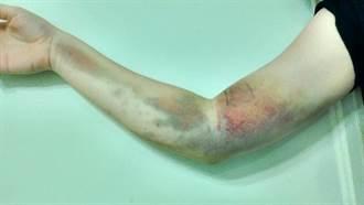 17歲少女捐血「插錯血管」賠掉右手臂!血液四散瘀青抬不起