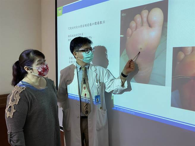 中山附醫高壓氧中心主任林任家指出,何女士(左)一開始右腳傷口只有針孔大小。(馮惠宜攝)