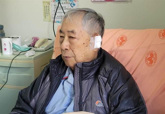 李富城主播今(25日)早左耳進行慢氏莫氏手術(slow mohs surgery)。(照片/游定剛 拍攝)