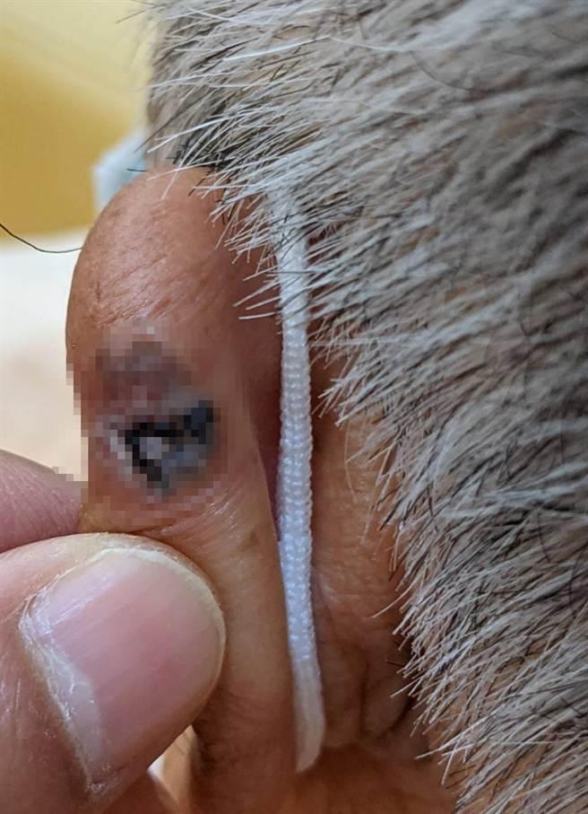 李富城主播左耳罹患基底細胞癌。(照片/李富城 提供)