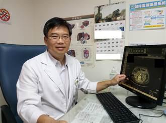 出現黃疸、上腹痛、體重減輕 小心是胰臟癌