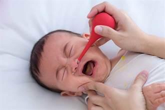 寶寶鼻水「共共流」是感冒嗎?小心可能是過敏上身