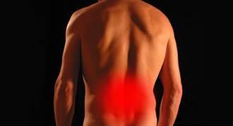 下背痛有兩種 第二種很難纏 多休息也不會好 盡快就醫