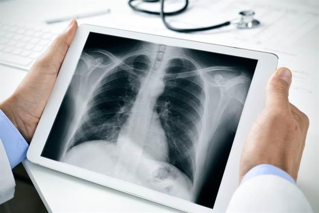 一名15岁的少年,瞒着家人偷偷抽了4年电子烟,最后竟然肺损伤住院。(图/Shutterstock)