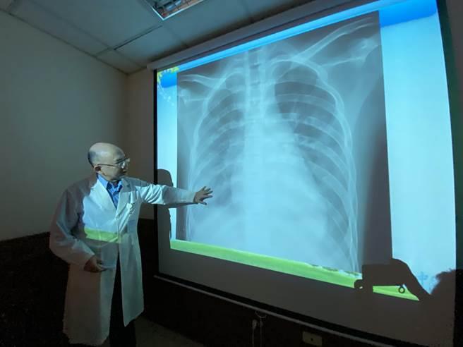 15歲少年入院做X光檢查,雙肺浸潤嚴重,雙側肺部都呈現白茫茫。(馮惠宜攝)
