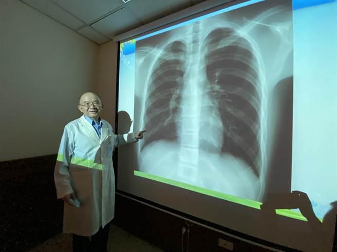 中山附醫兒科部醫師呂克桓在確定是電子菸造成的肺損傷,經類固醇治療後肺部X光有很大的改觀。(馮惠宜攝)