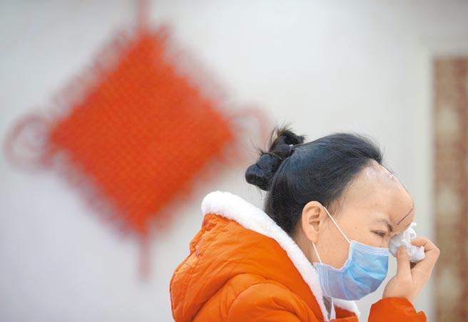 重慶一女性遭受家暴11年,因拒絕前夫復婚要求,被對方咬掉鼻子。(中新社資料照片)
