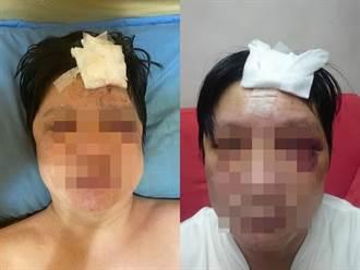 男抱怨3酒女「強制坐檯」遭痛毆重傷 目擊者逆轉風向