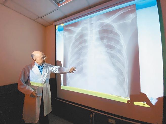 15歲少年疑因抽電子菸急性肺炎,入院做X光檢查,雙肺浸潤嚴重,雙側肺部都呈現白茫茫。(馮惠宜攝)吸菸有害健康