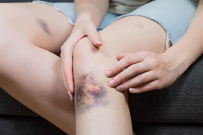 抗凝血劑藥物副作用大,若服用後出現出血、瘀青、解黑便等異狀,應該盡快就醫。(示意圖/常春月刊提供)