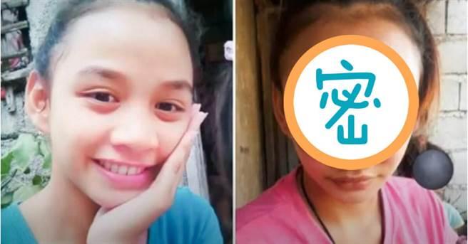 一名17歲的小媽媽鼻頭長痘,沒想到擠了一下竟面目全非慘照驚人。(圖/截自The Sun推特)