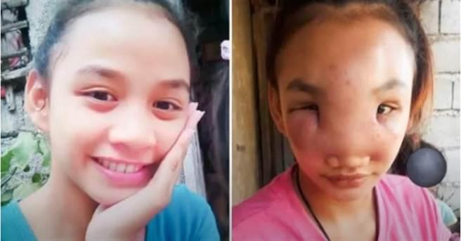 17歲的里加齊鼻子腫成3倍大,與原本清秀的模樣對比,模樣驚人。(圖/截自The Sun推特)