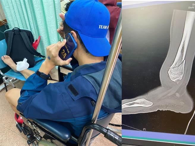 胡宇威骨頭骨折。(摘自臉書)